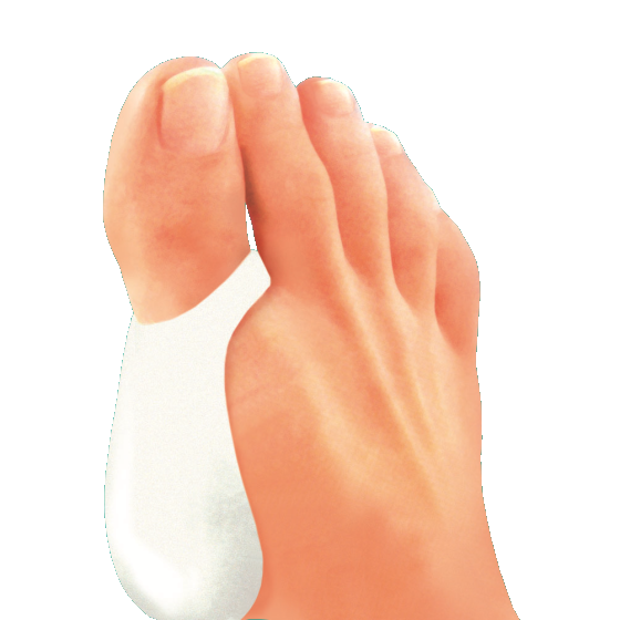 Предпазител за кокълче на палеца