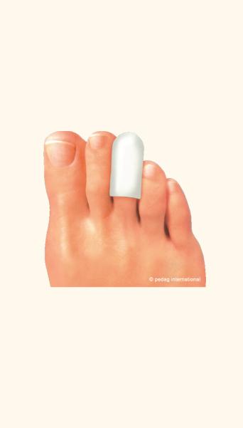Предпазител за ноктите на пръстите на краката